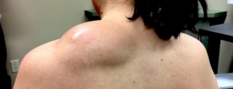Pimple Popping Doctor Takes on Her Toughest Challenge Yet, a Massive Lipoma on a Patient's Back!