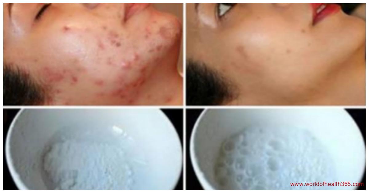 Как на лице от угрей шрамы убирать