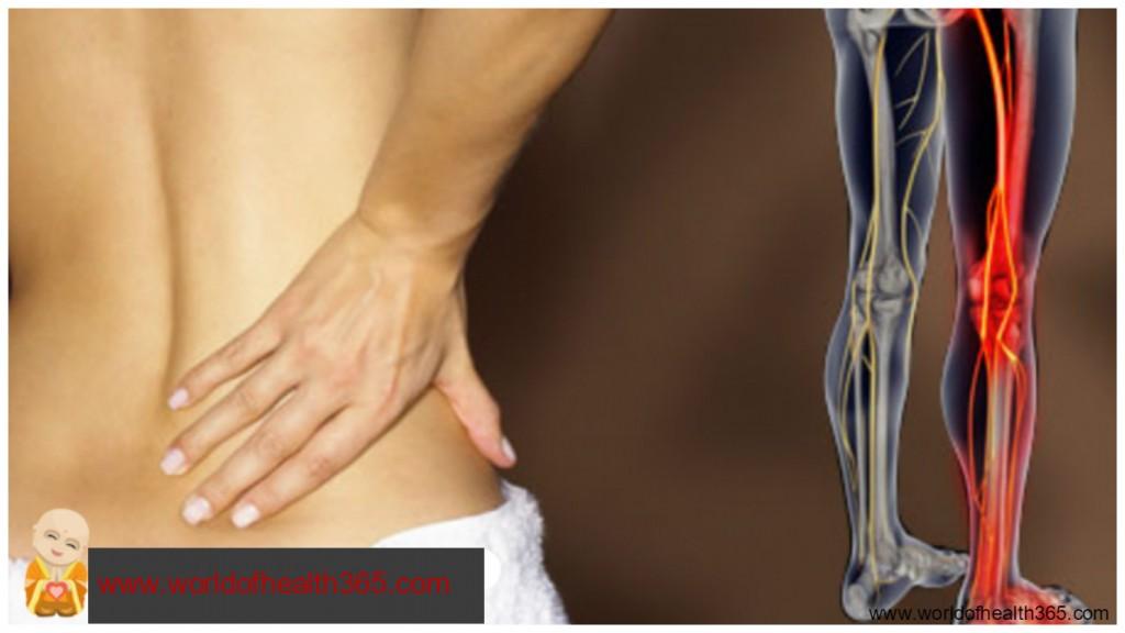 Остеохондроз ноги как облегчить боль